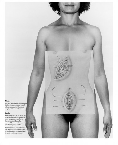 Donna-Lee Phillips, The Abdomen, from the series Anatomical Insights, 1978, printed 2016, Cherry and Martin