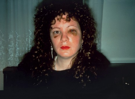 Nan Goldin, Nan one month after being battered, 1984 , Matthew Marks Gallery
